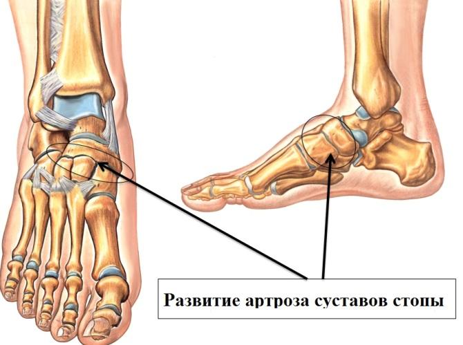 a bokaízület deformáló artrózisa 1 fok)