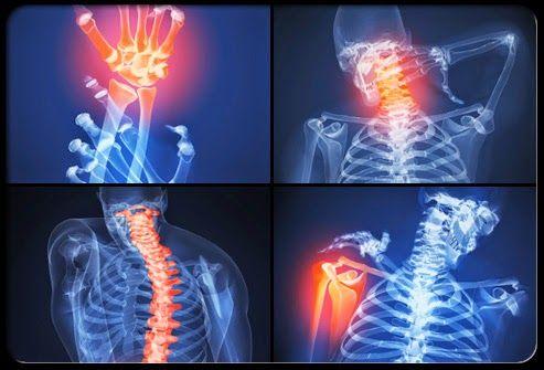 rheumatoid arthritis lelki háttere)