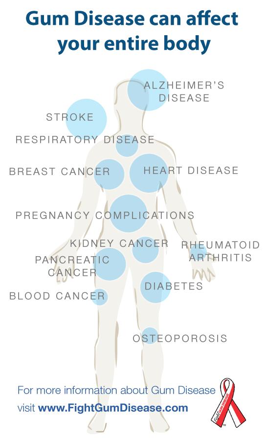 szubtalaris ízületi arthrosis