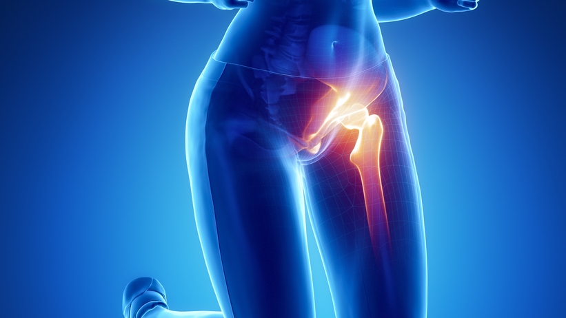 bal oldali csípőfájdalom)