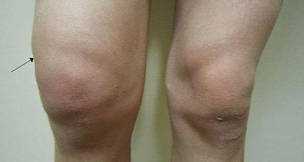 a könyökízület bursitisének kezelése kenőcsökkel milyen gélt injektálnak az ízületbe