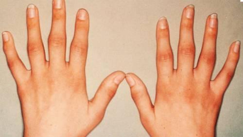 a kezek ízületeinek osteoarthrosis)