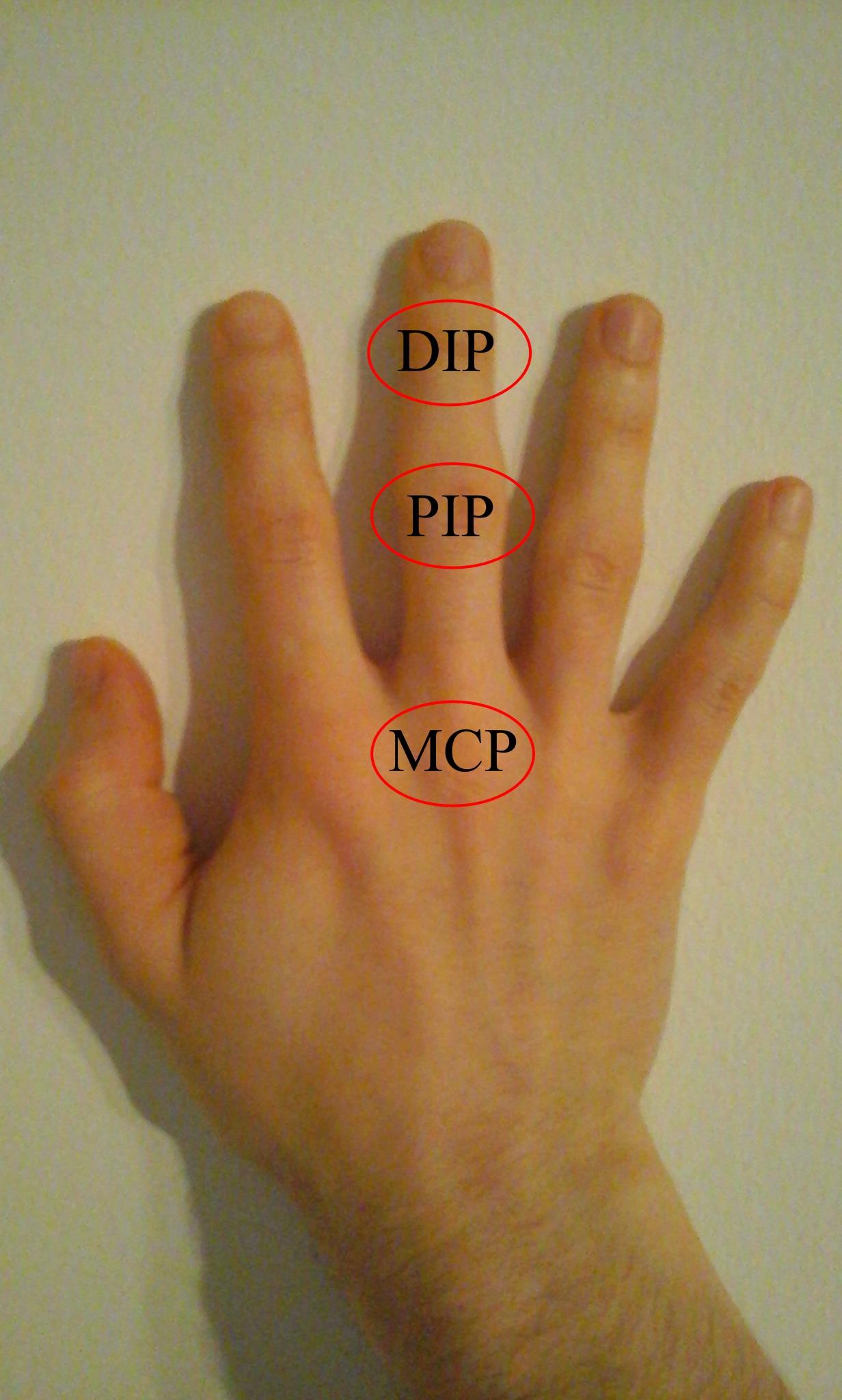 a mutatóujj rheumatoid arthritis)