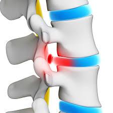miért fáj a csontok ízületei