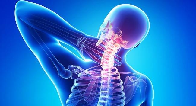 kenőcs a nyaki osteokondrozishoz