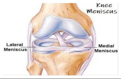 csípő fáj a kocogás után mobilitás a térdízületekben