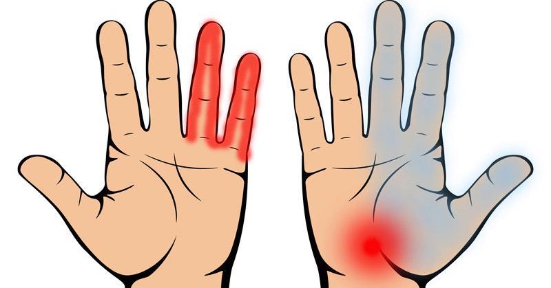a kéz ujjai nagyon fájnak)