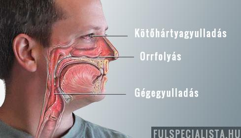 A krónikus arcfájdalom tünetei, kezelési lehetőségei