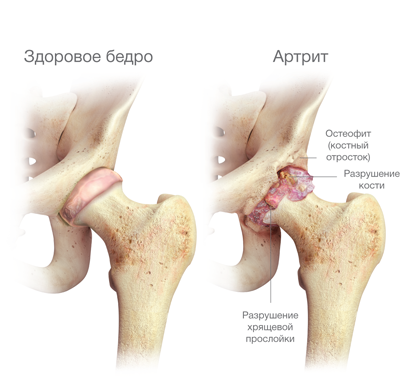 ízületek és gerinc disztrofikus betegségei)