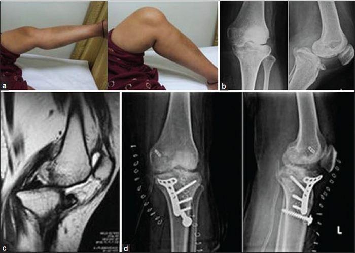 Csonttörés utáni fájdalom csillapítása