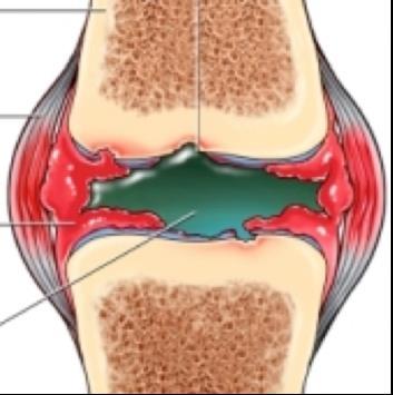 duzzadt lábak térdízület artrózisával
