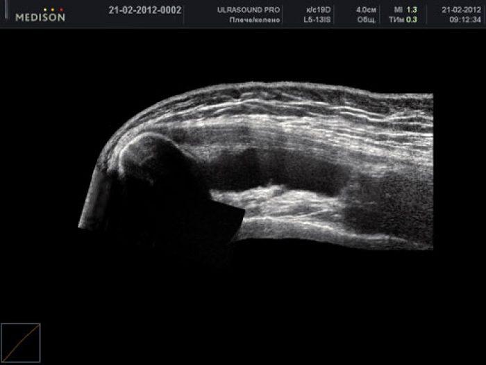 Hogyan lehet azonosítani egy repedést a bokában - 9 kezelés - Arthritis July