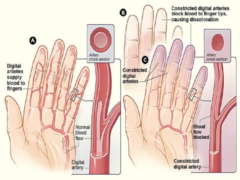 fáj a karok és a lábak ízületei és a gerinc