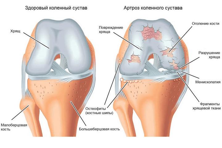 a térdízület fáj, ha meghajlik)