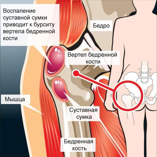 a csípőbőr fáj