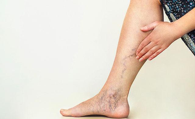 fájdalom a bokán