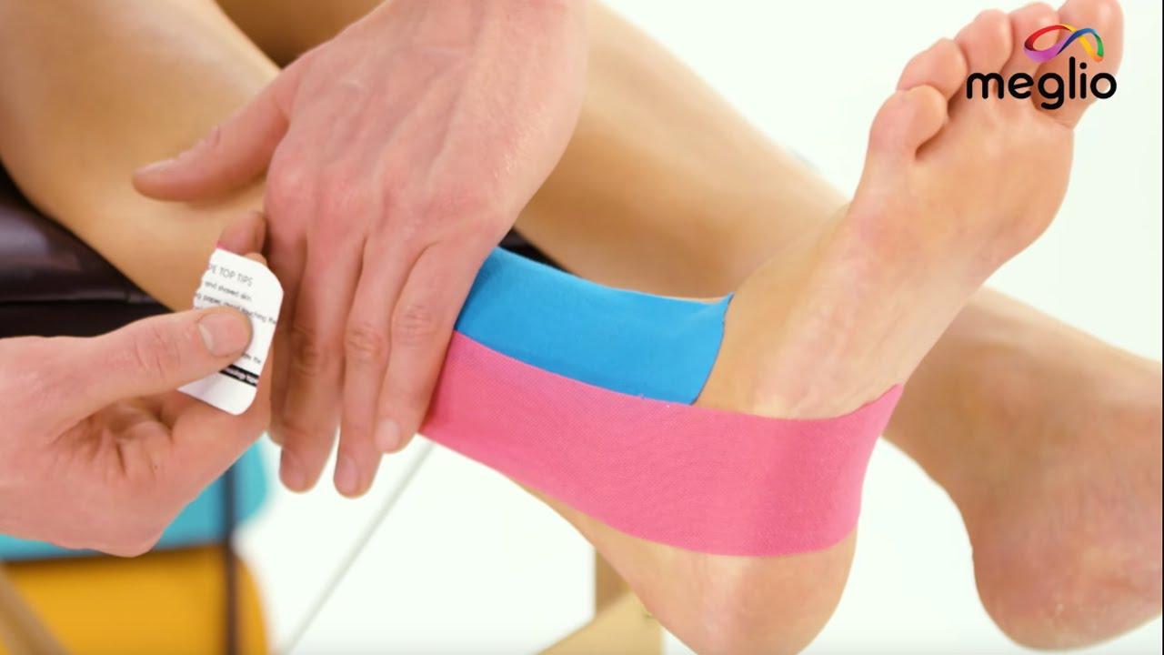 sprain kezelés térdízület