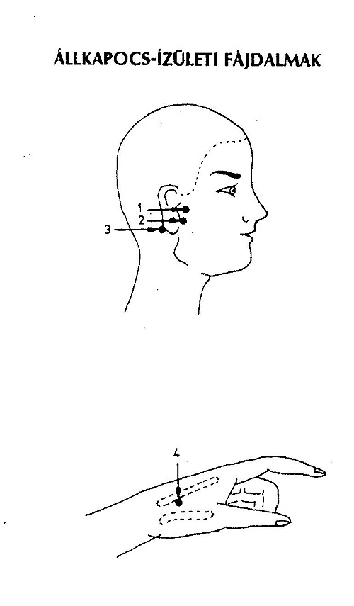 hogyan kezeljük a fülízületeket