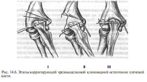 radiális pszeudoarthrosis)