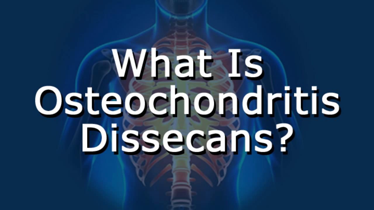 van-e térd osteochondrosis fájdalom a csípőízület lágy szöveteiben