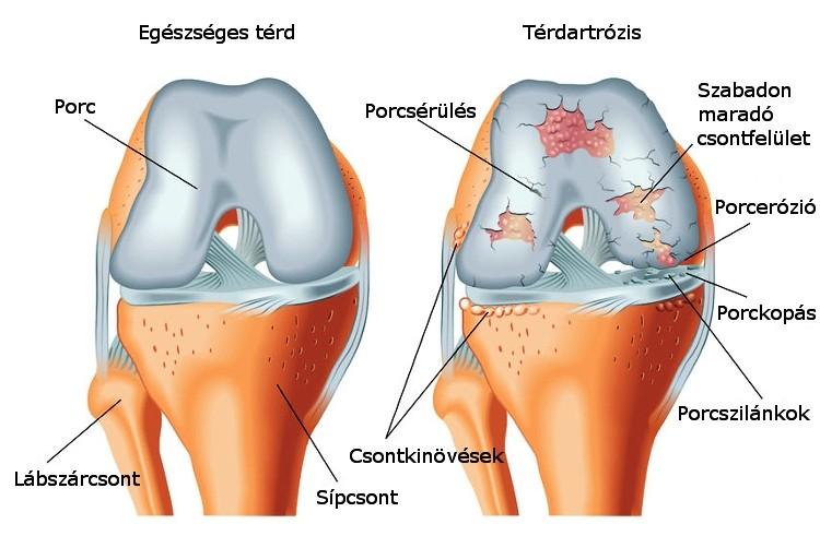 térd artrózissal guggolhat