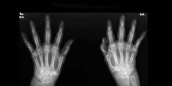 a kéz interfalangeális ízületei artrózisa