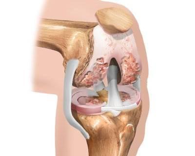 artrózis térdmozgással fájdalom a vállízület periartritiszével
