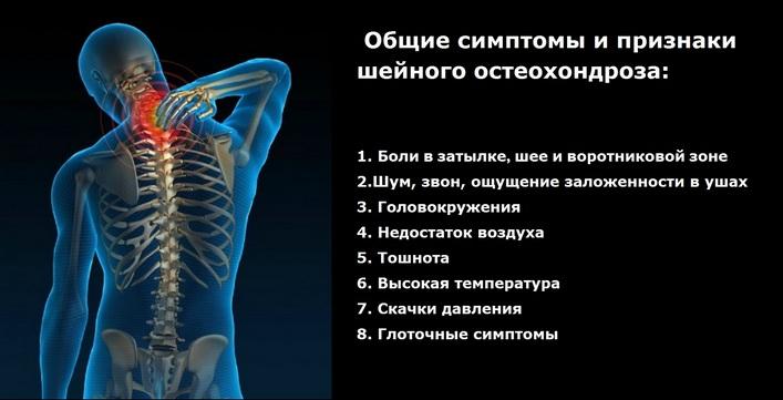 nyaki védő gyógyszerek méhnyakcsonti osteochondrozishoz