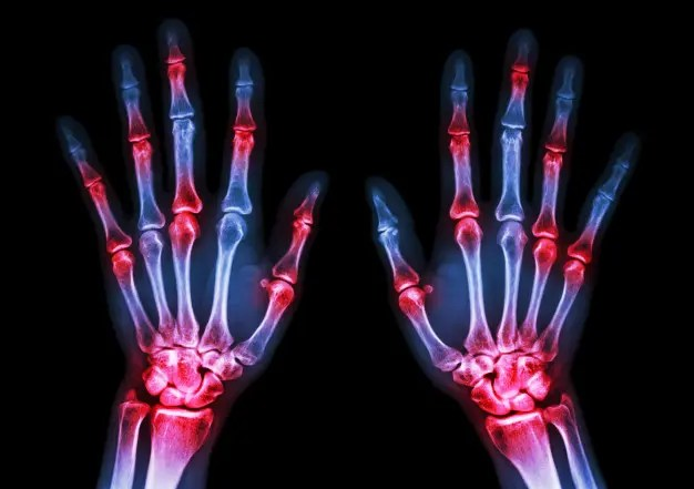 a térd szinovitisa reumatoid artritiszben)