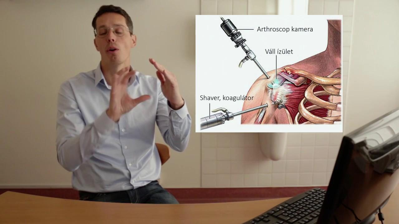 rheumatoid arthritis vállízület fájdalom a kezek ízületeiben, a vállízületek könyökein