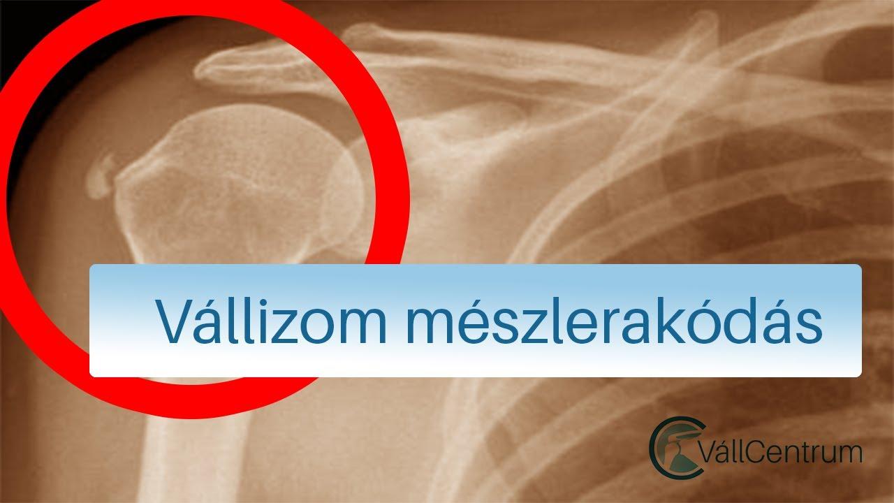 kenőcs a vállízület sérülésére)