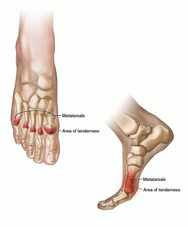 metatarsalis ízületi fájdalom