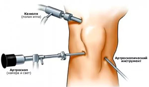 a csípőízület deformáló artrózisa 2-3 fokkal)