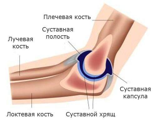 a kar könyökízületének törése)
