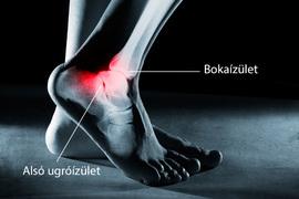 fájdalom a láb boka alatt járás közben)