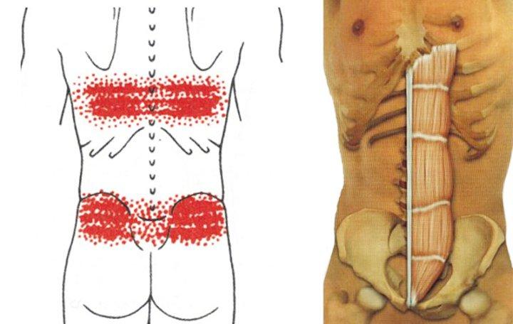 a szakrális artrózisos kezelése