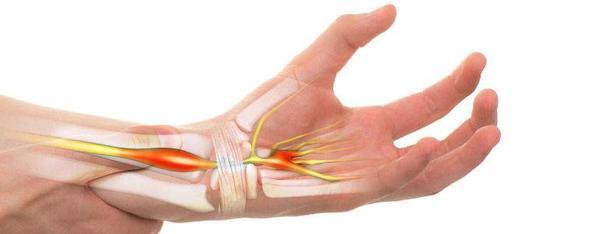 fájdalom a kéz kezének ízületeiben a kompresszióból