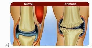 a térdízület első fokú artrózisa)