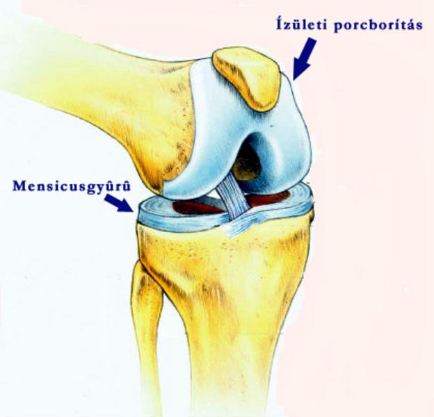 a térdízület első fokú artrózisa ízületi fájdalom az egész szervezetben