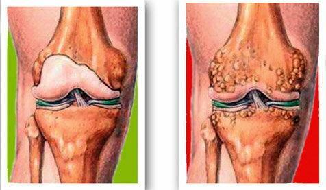 fájdalomcsillapítók térd artrózisához)