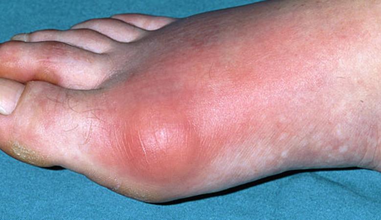 a lábujj ízületi gyulladása)