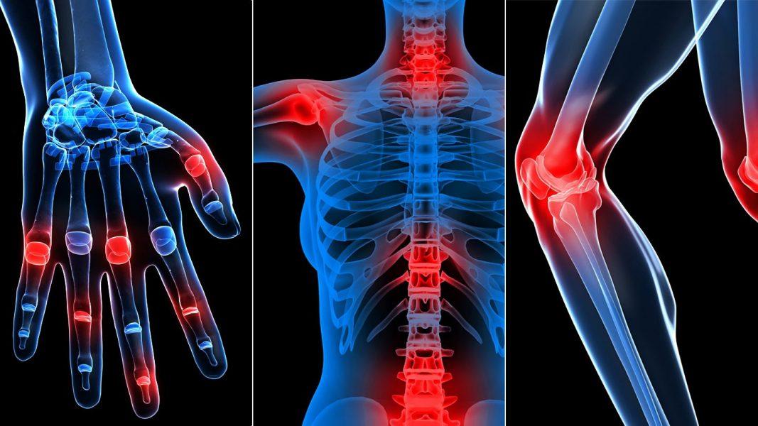 csont- és ízületi problémák