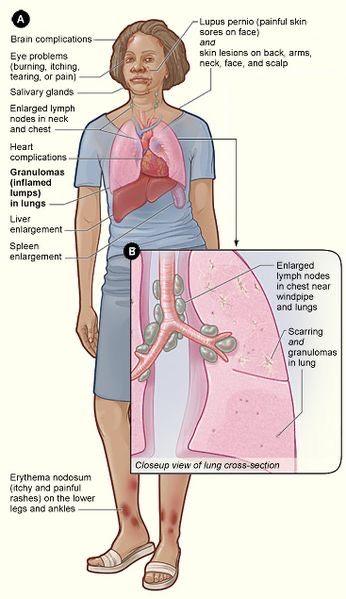 erythema nodosum ízületi fájdalom hasznos termékek térd artrózisához