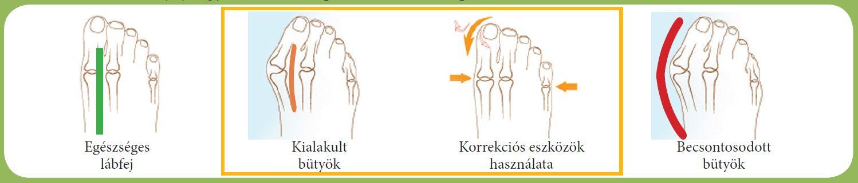 ujjízület javítás kezelése n-carpalízület ízületi gyulladása