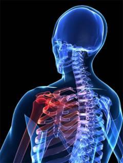 mi a blokád a vállízület artrózisával)