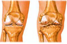 A térdízület arthrosisának kezelése otthon - a legjobb módja - Könyök