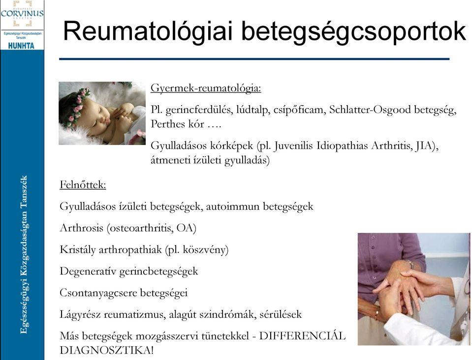 osguda-schlatter betegség, károsodott ízületi funkció nélkül)