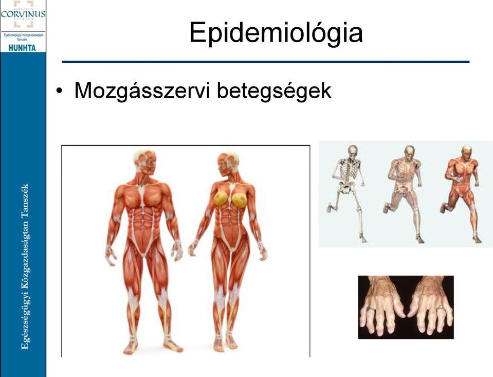 ízületi betegségek nómenklatúrája