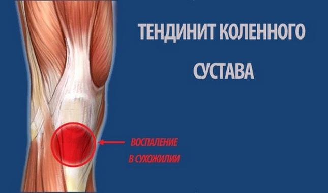 uhf a térd ízületi gyulladás kezelésében)