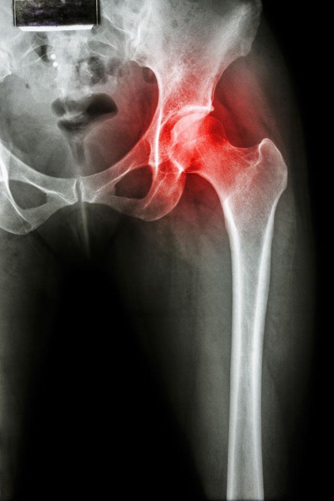 csípő coxarthrosis és kezelése)